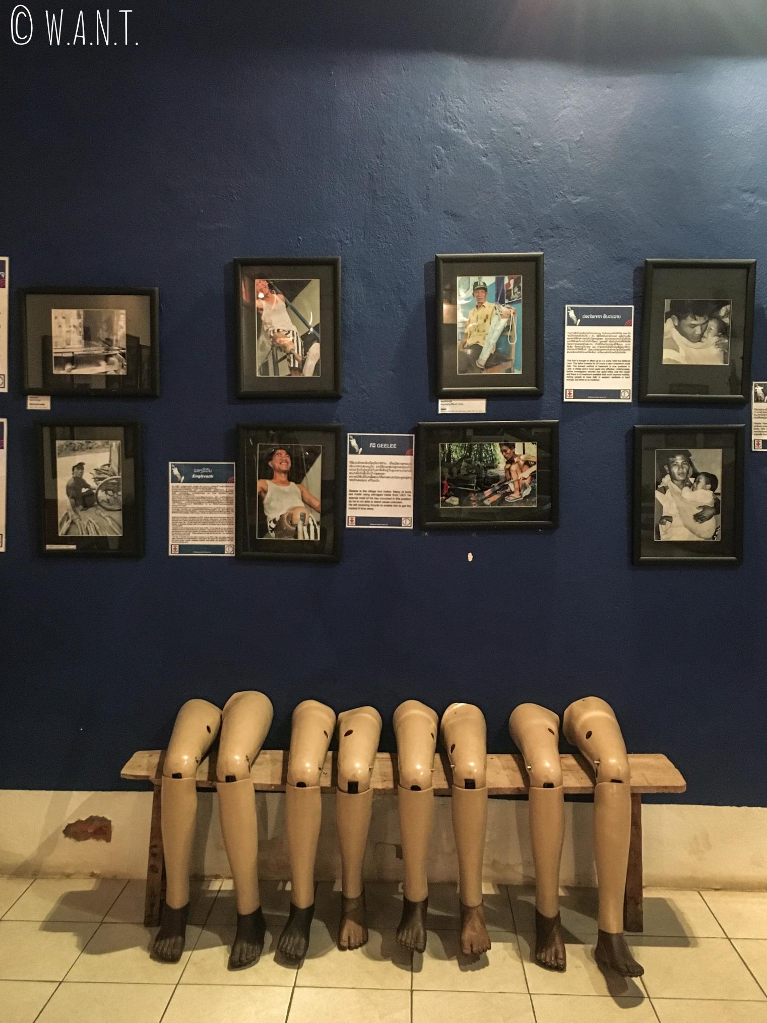 Prothèses pour les victimes des UXO au COPE Visitor Centre de Vientiane